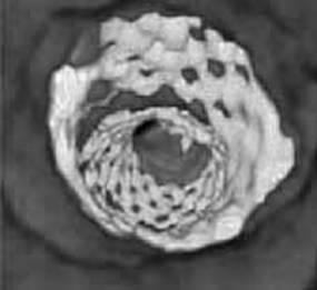 3.2 Рентгеновская диагностика